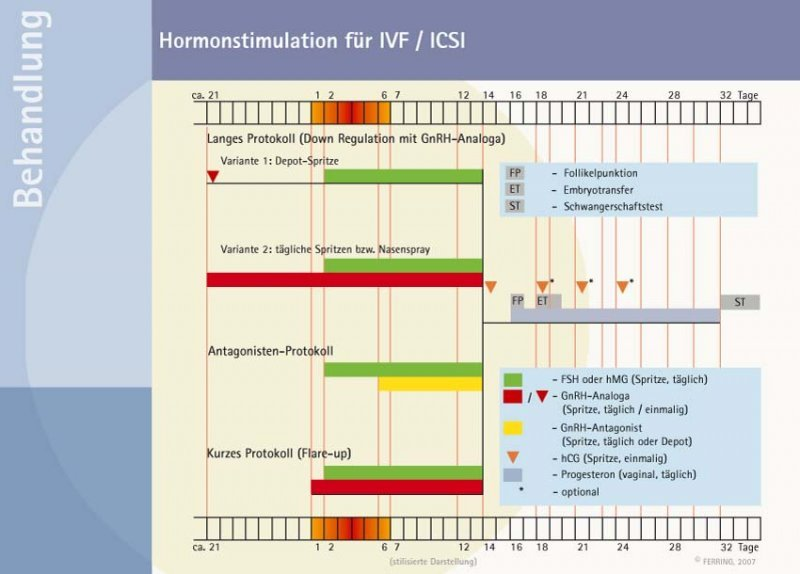 IVF/ICSI – treatment steps